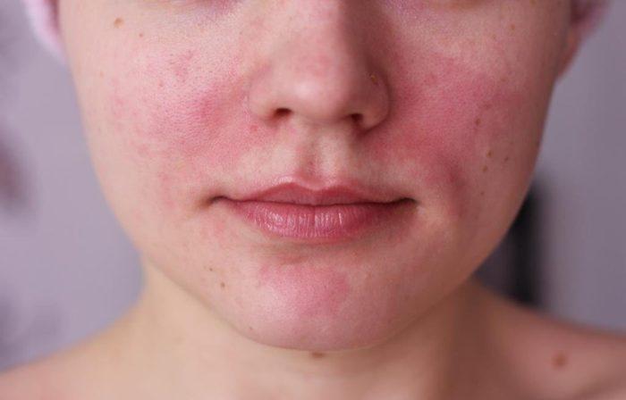 Мелкие и крупные прыщи на подбородке у женщин: причины и симптомы