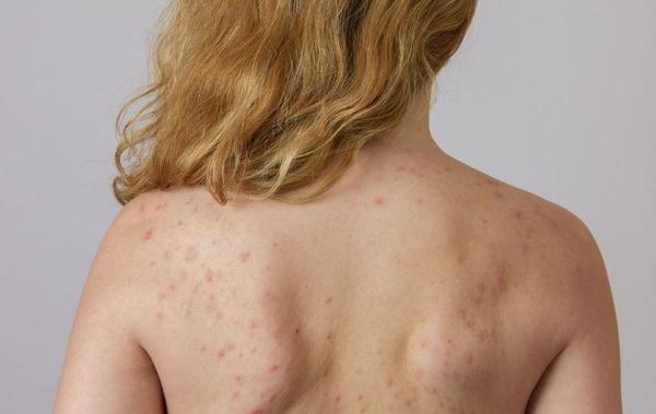 Как быстро вылечить прыщи на спине и плечах у женщин и мужчин. Эффективные мази, народные средства, косметические процедуры