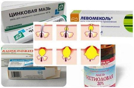 Препараты для устранения прыщей на попе у женщин