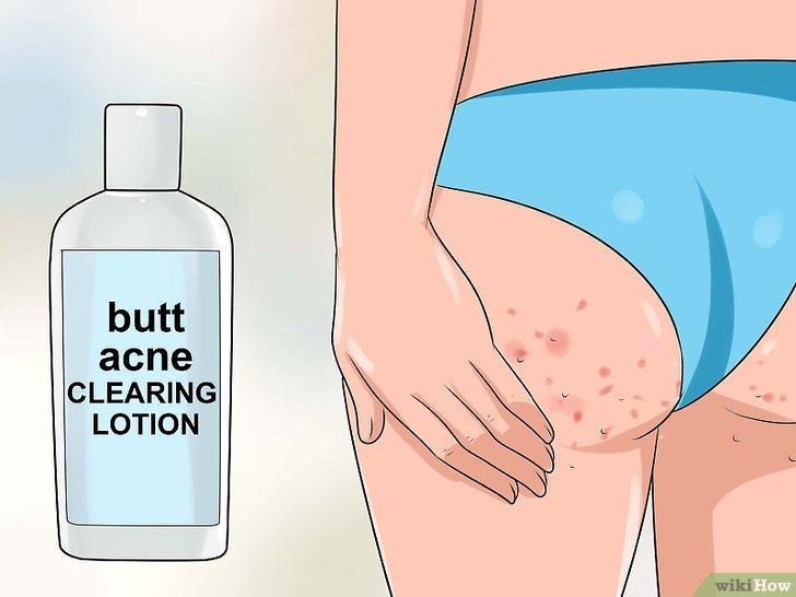 Изображение с названием Get Rid of Acne on the Buttocks Step 1
